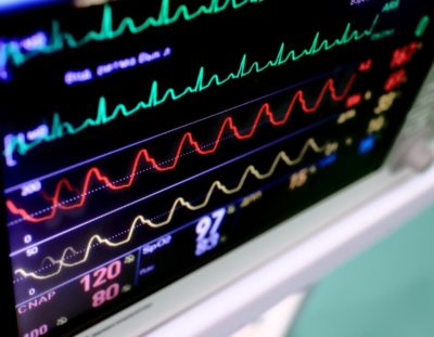dairy-road-urgent-care-ekg-electrocardiography-brevard-county