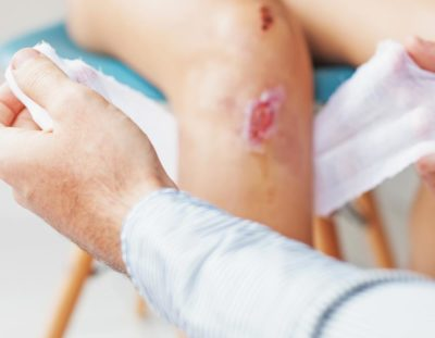 dairy-road-urgent-care-lacerations-treatments
